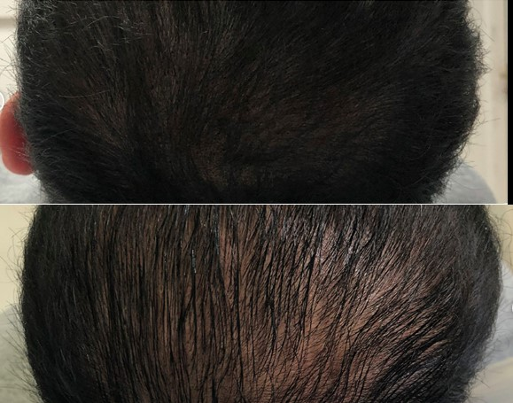 hair thinning treatment SD harley street